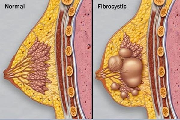 ब्रेस्ट सिस्ट है ब्रेस्ट में दर्द (मस्टालजिया) होने का कारण - Breast Cyst Causes Breast Pain (Mastalgia) in Hindi