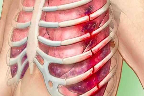 ब्रेस्ट में दर्द (मस्टालजिया) के अन्य कारण - Other Causes of Breast Pain (Mastalgia) in Hindi