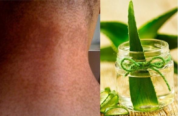 गर्दन का कालापन हटाएं एलोवेरा जैल से - Aloe Vera Good for Dark Neck in Hindi