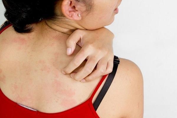 कैलामाइन लोशन का उपयोग दाग धब्बों के लिए - Calamine Lotion for Acne in Hindi