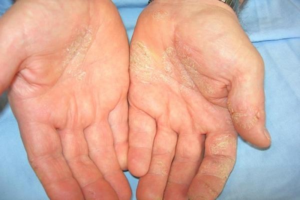 कैलामाइन लोशन है एलर्जी में असरदार - Calamine Lotion for Allergy in Hindi