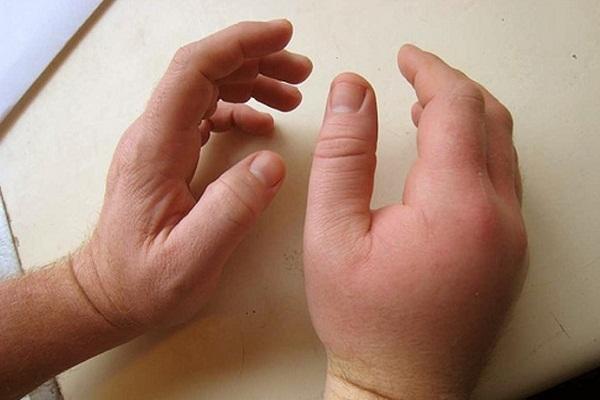 कैलामाइन लोशन करे सूजन को कम - Calamine Lotion for Swelling in Hindi