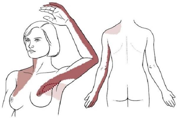 चक्रीय ब्रेस्ट में दर्द के लक्षण - Cyclic breast pain (Mastalgia) symptoms in Hindi