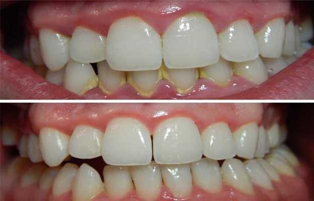 हम दांतों की सफाई नहीं करवाते - We don't get out teeth cleaned in Hindi