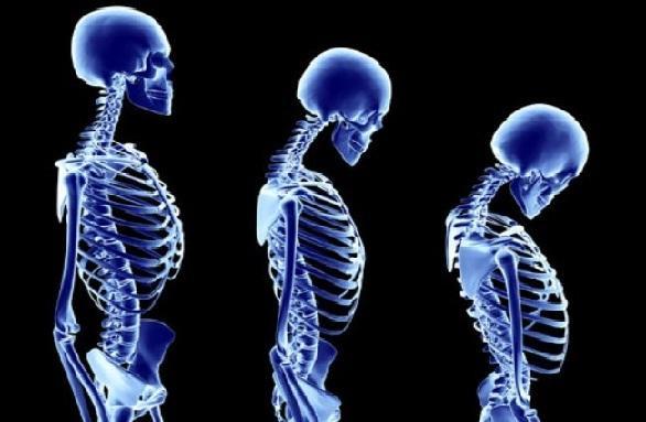 स्टेविया का सेवन बनाए हड्डियों को मजबूत - Stevia for Bones in Hindi