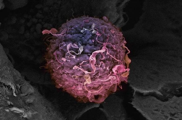 स्टेविया के औषधीय गुण करे कैंसर का इलाज - Stevia Cures Cancer in Hindi